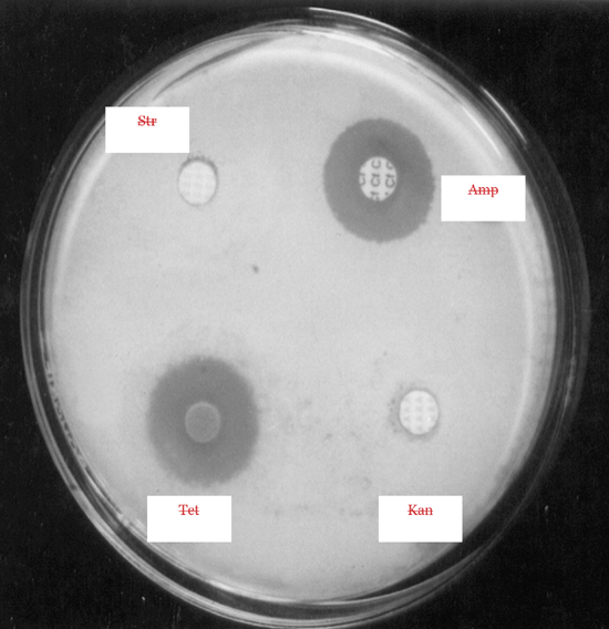 Isolation of Actinomycetes Strains and their Different